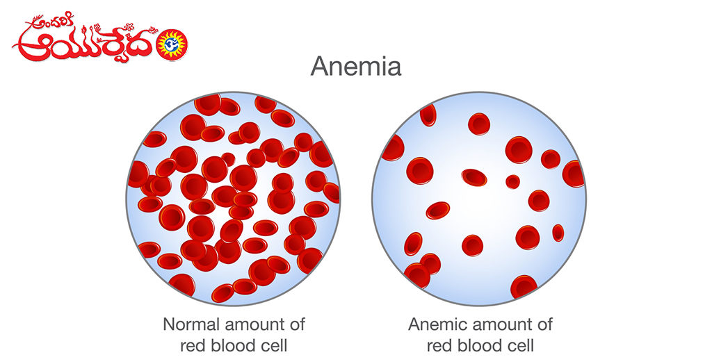 Ayurvedic Remedy For Anemia
